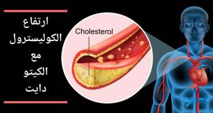 ارتفاع الكوليستيرول مع الكيتو دايت